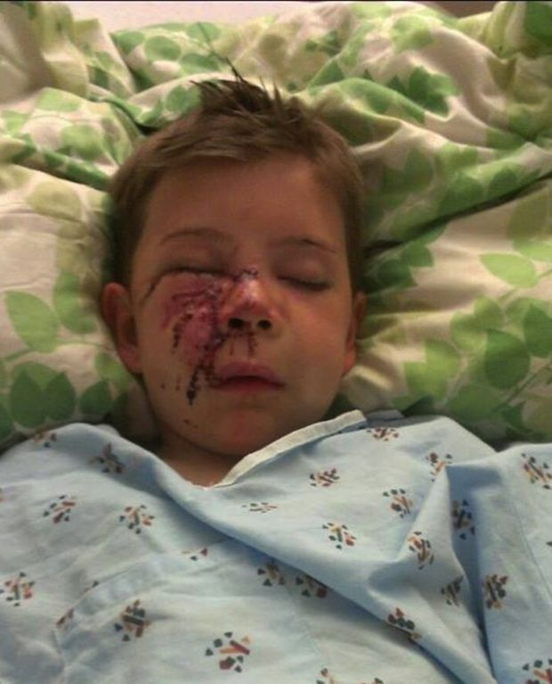 Family traumatized by vicious attack of 7-year-old son | PennLive.com